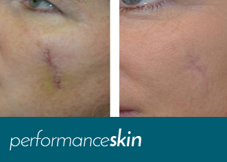 performance skin scar removal